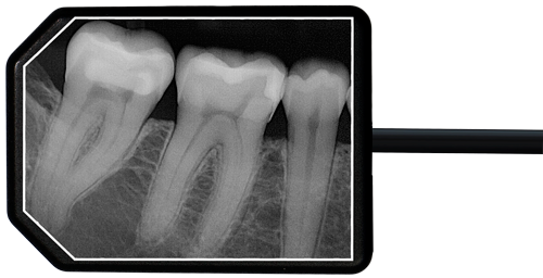 Ei-Dental-Sensors-Size2-Xray-Web