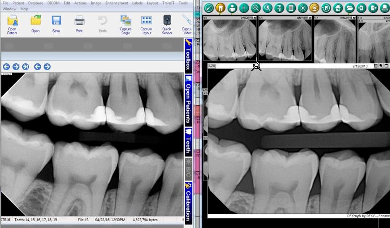 Apex Dental Sensor VS Dexis