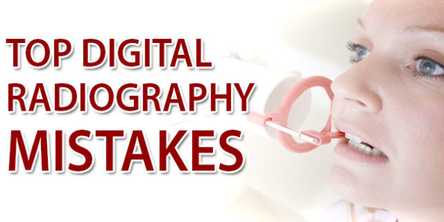 Top-Digital-Radiography-Mistakes
